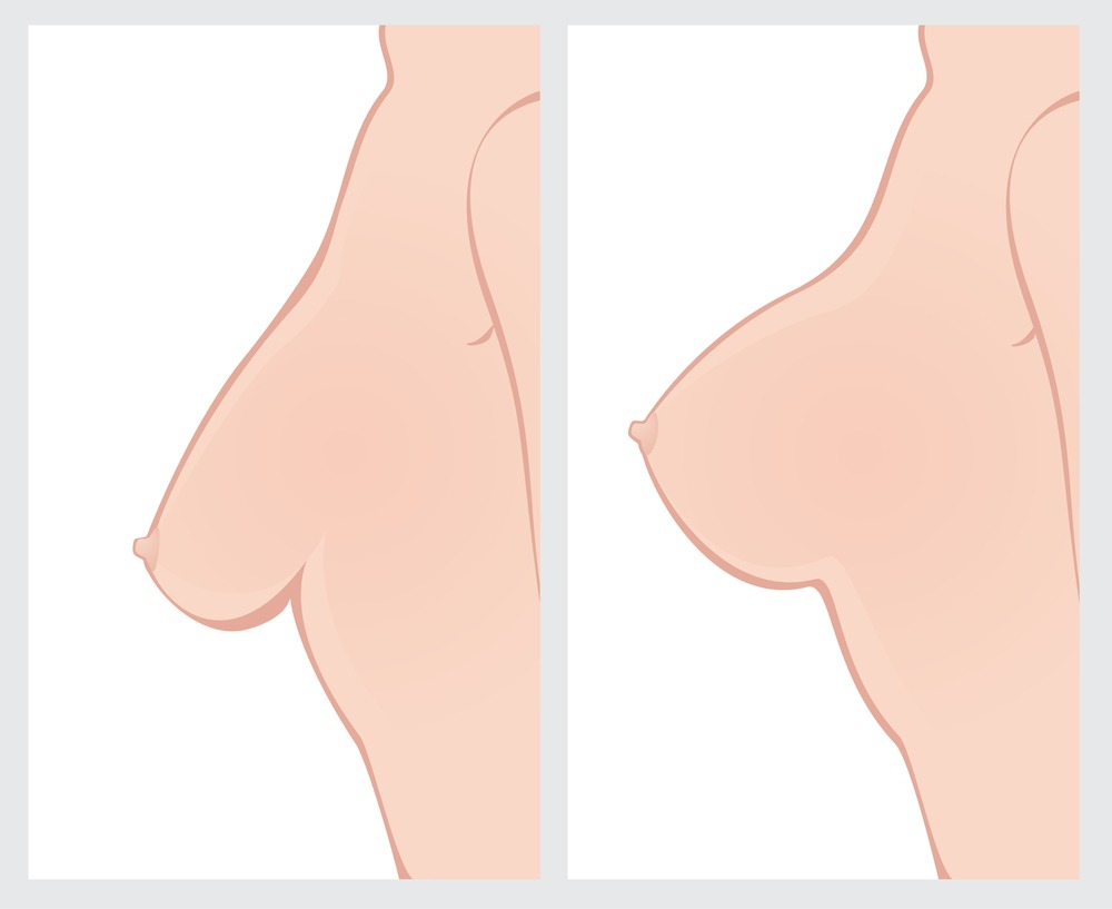Breast Lift vs. Breast Implant- What's the Difference