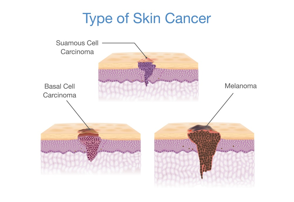 What are the different types of skin cancer? - Dr. Michael J. Streitmann