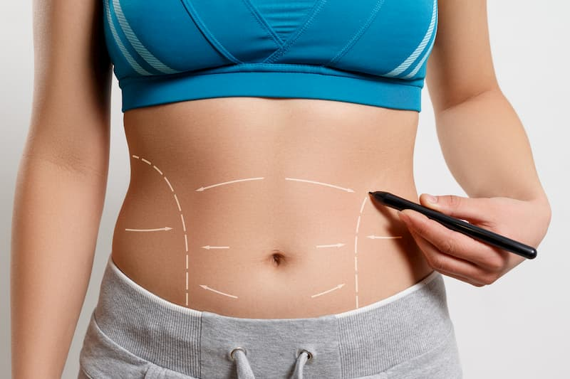 Difference-between-liposuction-and-tummy-tuck-Michael-J-Streitmann-MD-Houston