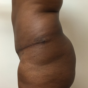 Abdominoplasty after 1
