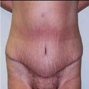 Abdominoplasty after 9