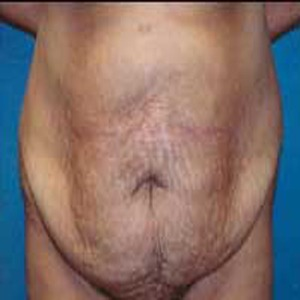 Abdominoplasty before 9