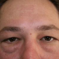 Blepharoplasty after 1