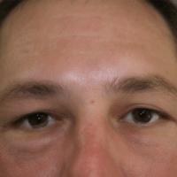 Blepharoplasty before 1