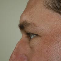 Blepharoplasty before 2