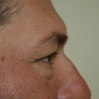 Blepharoplasty before 3