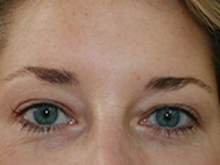 Blepharoplasty before 4