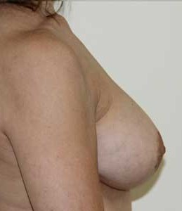 Breast Augmentation after 1