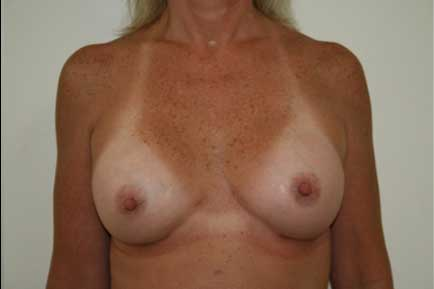 Breast Augmentation after 8