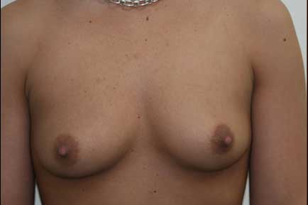 Breast Augmentation before 4