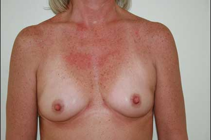 Breast Augmentation before 8