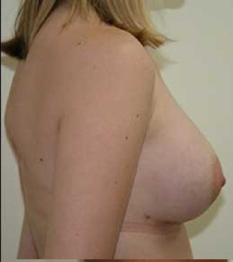 Breast Aumentation After Picture