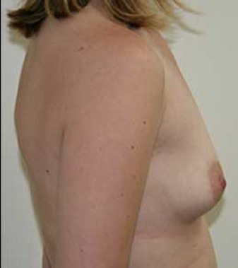 Breast Aumentation Before Picture