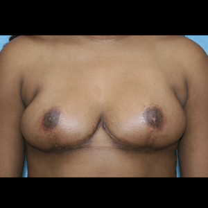 Breast Reduction after 1