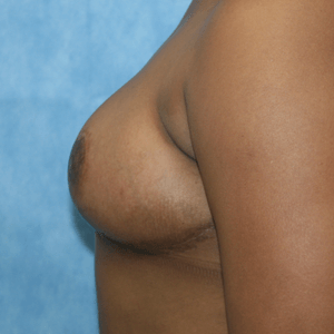 Breast Reduction after 2