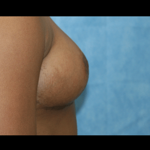 Breast Reduction after 3