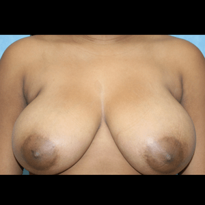 Breast Reduction before 1