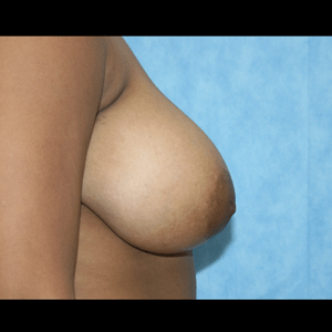 Breast Reduction before 3