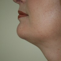 Chin Augmentation after 1