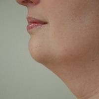 Chin Augmentation before 1