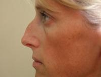Rhinoplasty before 4