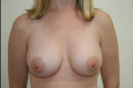 Sub-Muscular Breast Augmentation after 2