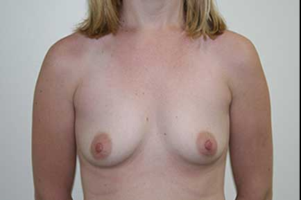 Sub-Muscular Breast Augmentation before 2
