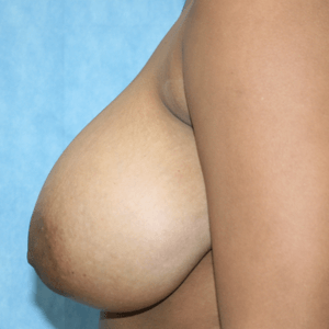 breast-reduction-2-left-before