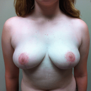 breast-reduction-after