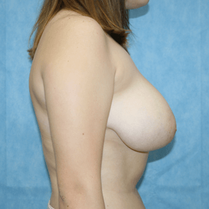 breast-reduction-side-before