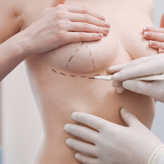choose-a-breast-reconstruction-professional-you-can-trust