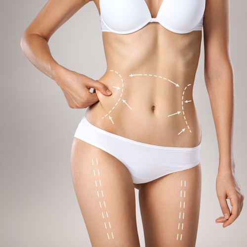 liposuction procedures in houston