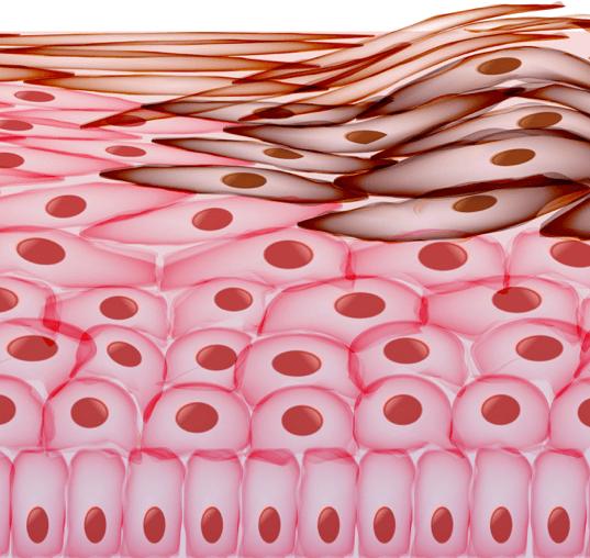 skin-cells-cancer