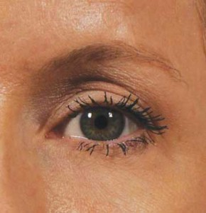 ultherapy_brow_after_1