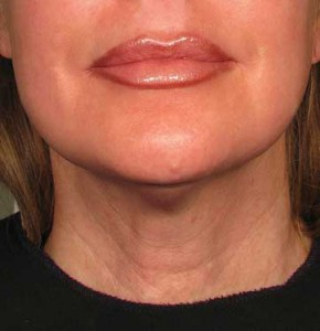 ultherapy_neck_after_1