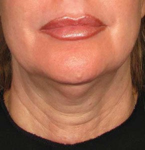 ultherapy_neck_before_1