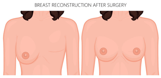 what is breast reconstruction surgery