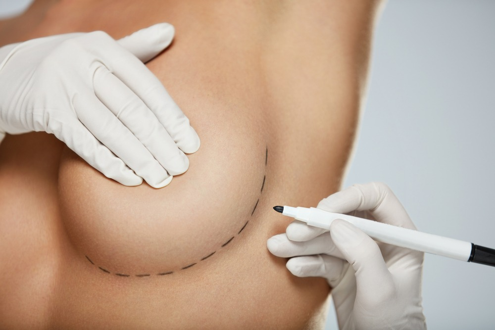 what-happens-to-nipple-sensitivity-after-breast-augmentation