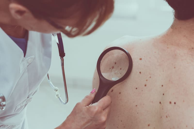 spring-break-is-fun-but-protect-yourself-from-melanomaMichael-J-Streitmann-MD-Houston