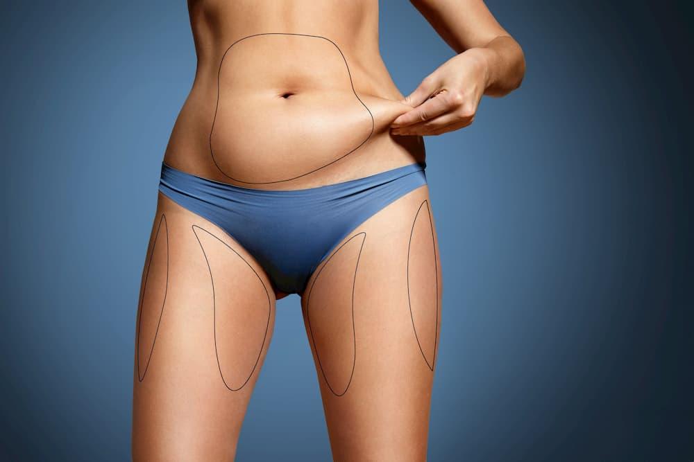 By Beauty Stock liposuction (1)